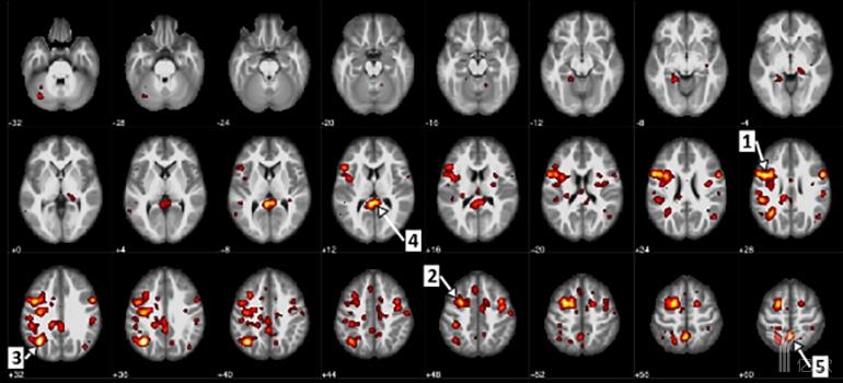 IBM深耕AI+医疗:借助深度学习识别早期精神分裂症